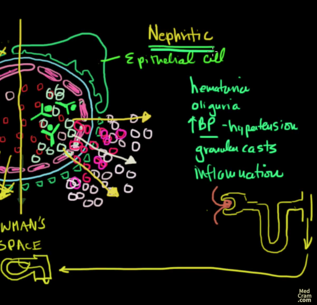 nephrotic and nephritic syndrome